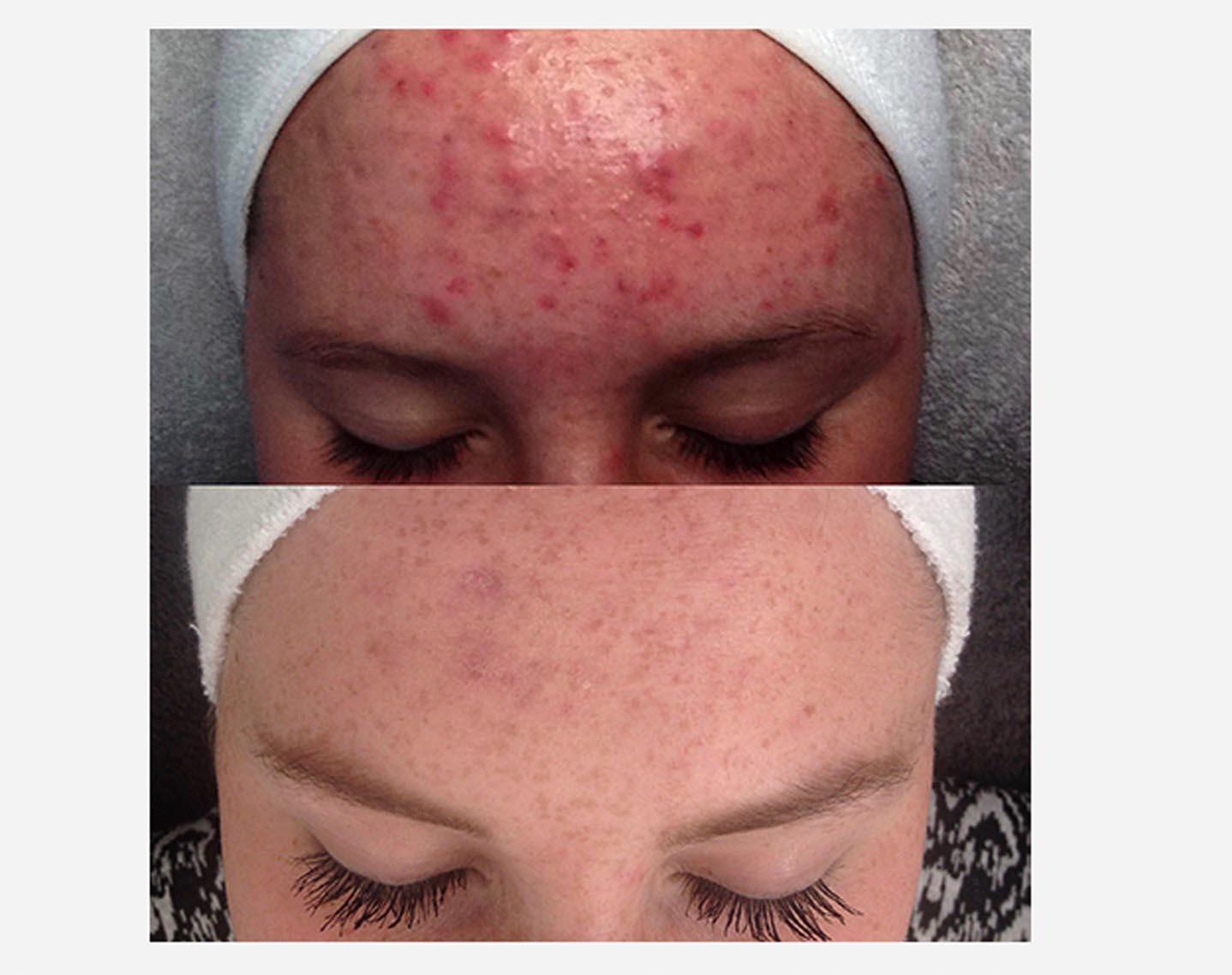 cosma-acne-behandeling